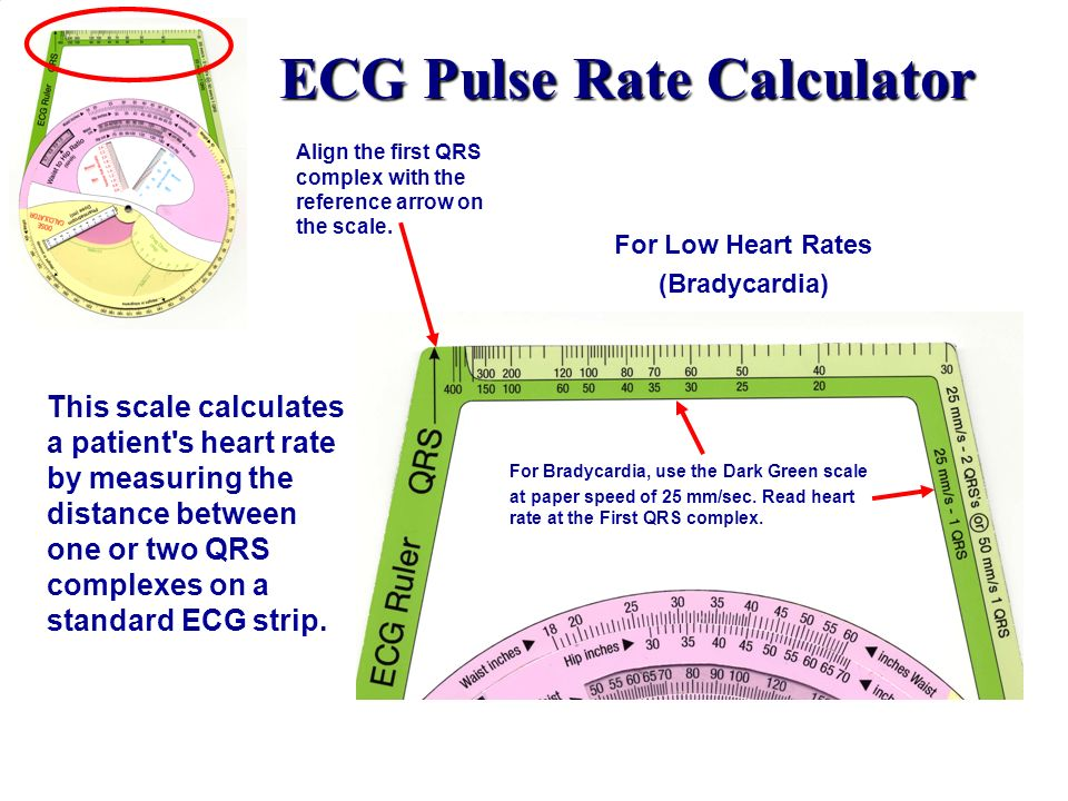 ECG Pulse Rate Calculator This scale calculates a patient's heart rate by measuring the distance between one or two QRS complexes on a standard ECG st