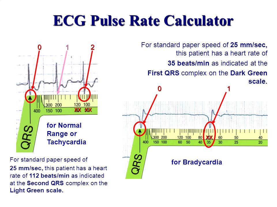 ECG Pulse Rate Calculator For standard paper speed of 25 mm/sec, this patient has a heart rate of 35 beats/min as indicated at the First QRS complex o