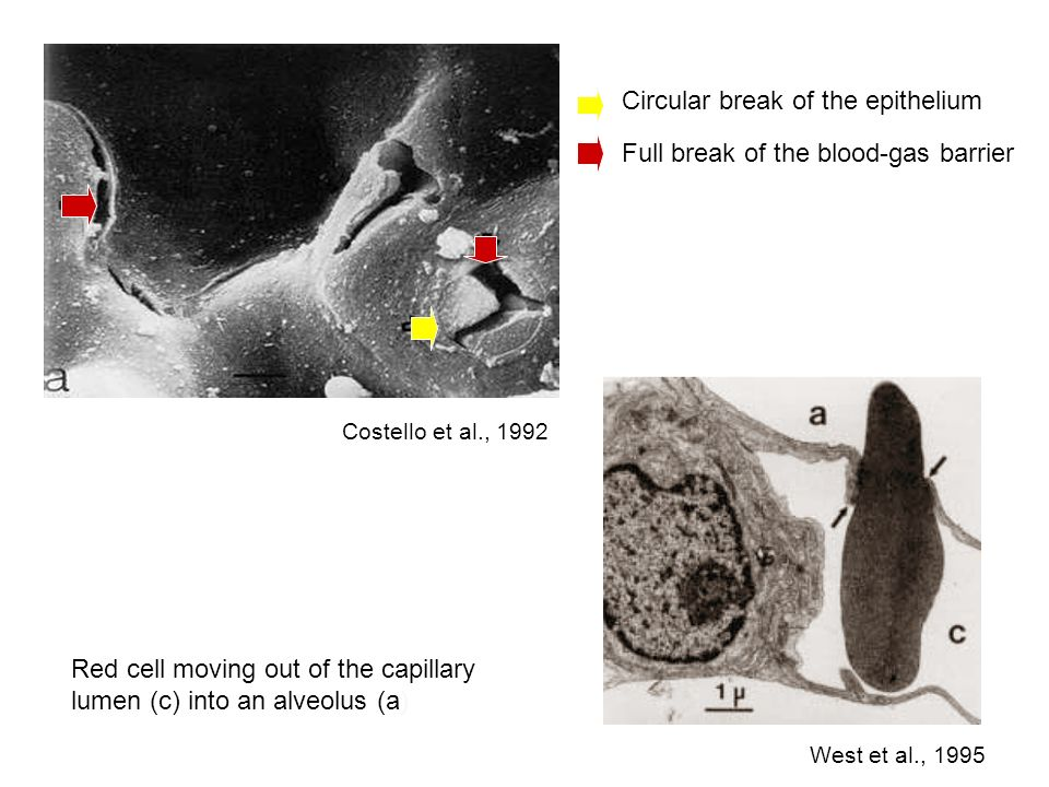 West et al., 1995 Costello et al., 1992 Full break of the blood-gas barrier Circular break of the epithelium Red cell moving out of the capillary lume
