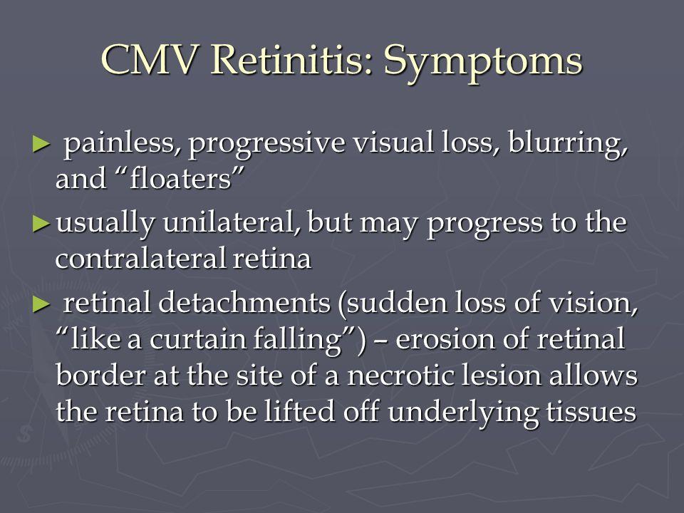 CMV Retinitis: Symptoms painless, progressive visual loss, blurring, and floaters painless, progressive visual loss, blurring, and floaters usually un