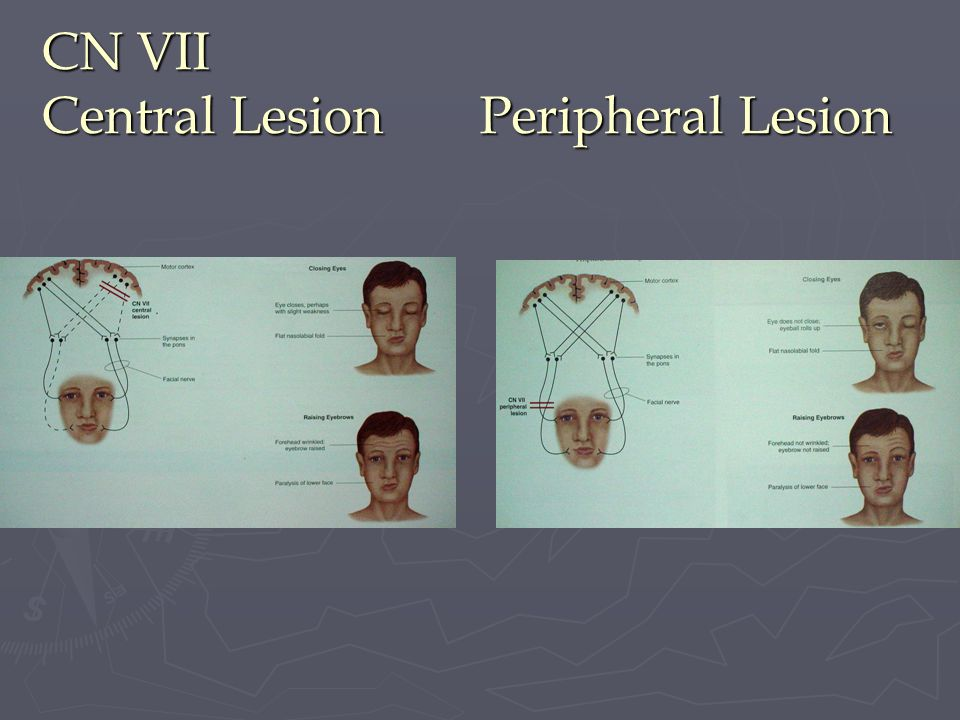 CN VII Central Lesion Peripheral Lesion