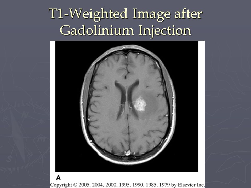 T1-Weighted Image after Gadolinium Injection