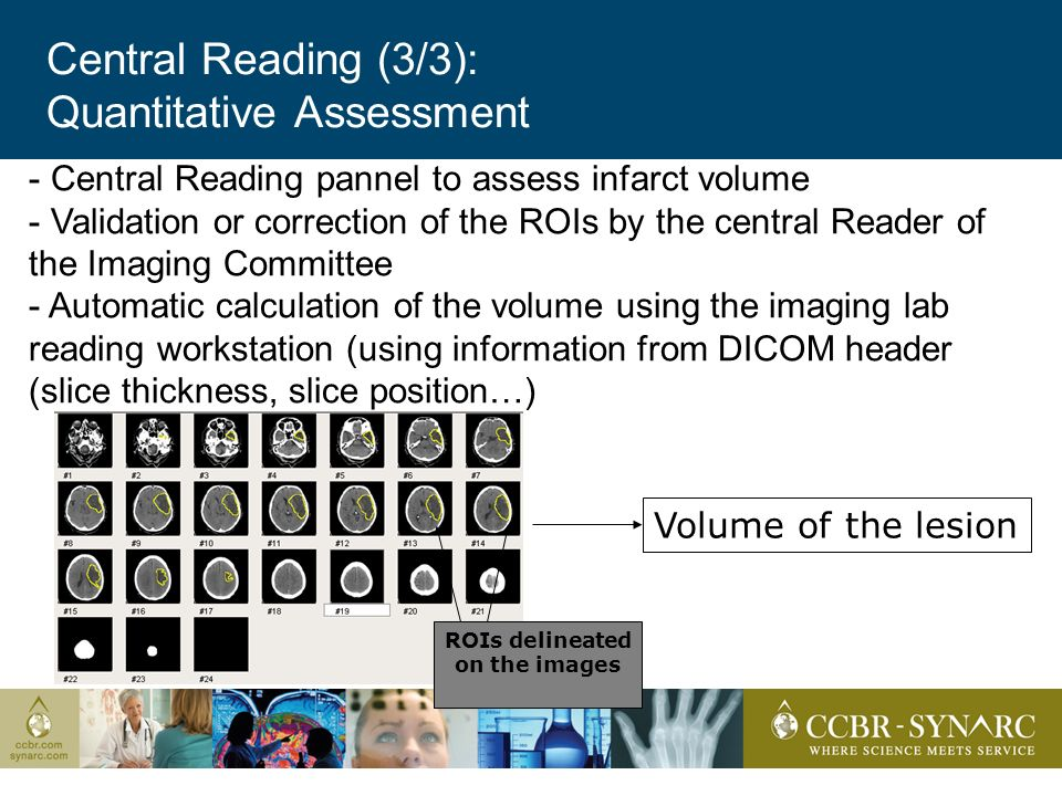 Central Reading (3/3): Quantitative Assessment - Central Reading pannel to assess infarct volume - Validation or correction of the ROIs by the central Reader of the Imaging Committee - Automatic calculation of the volume using the imaging lab reading workstation (using information from DICOM header (slice thickness, slice position…) Volume of the lesion ROIs delineated on the images