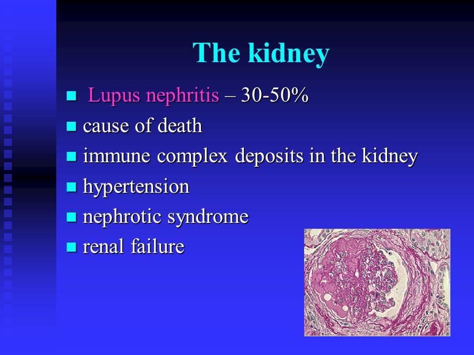 The kidney Lupus nephritis – 30-50% Lupus nephritis – 30-50% cause of death cause of death immune complex deposits in the kidney immune complex deposi