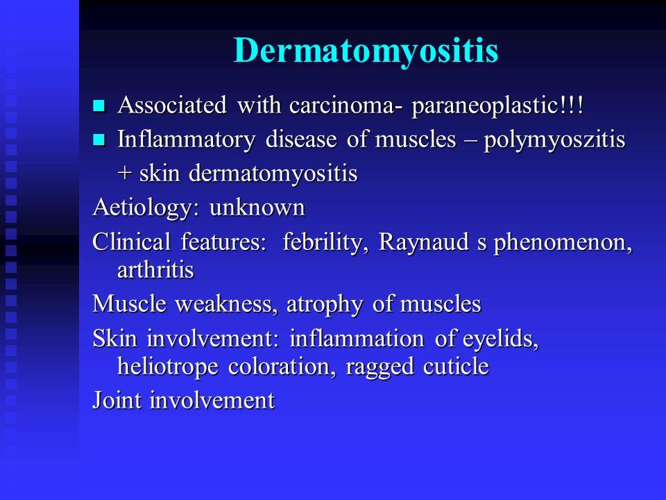 Dermatomyositis Associated with carcinoma- paraneoplastic!!! Associated with carcinoma- paraneoplastic!!! Inflammatory disease of muscles – polymyoszi