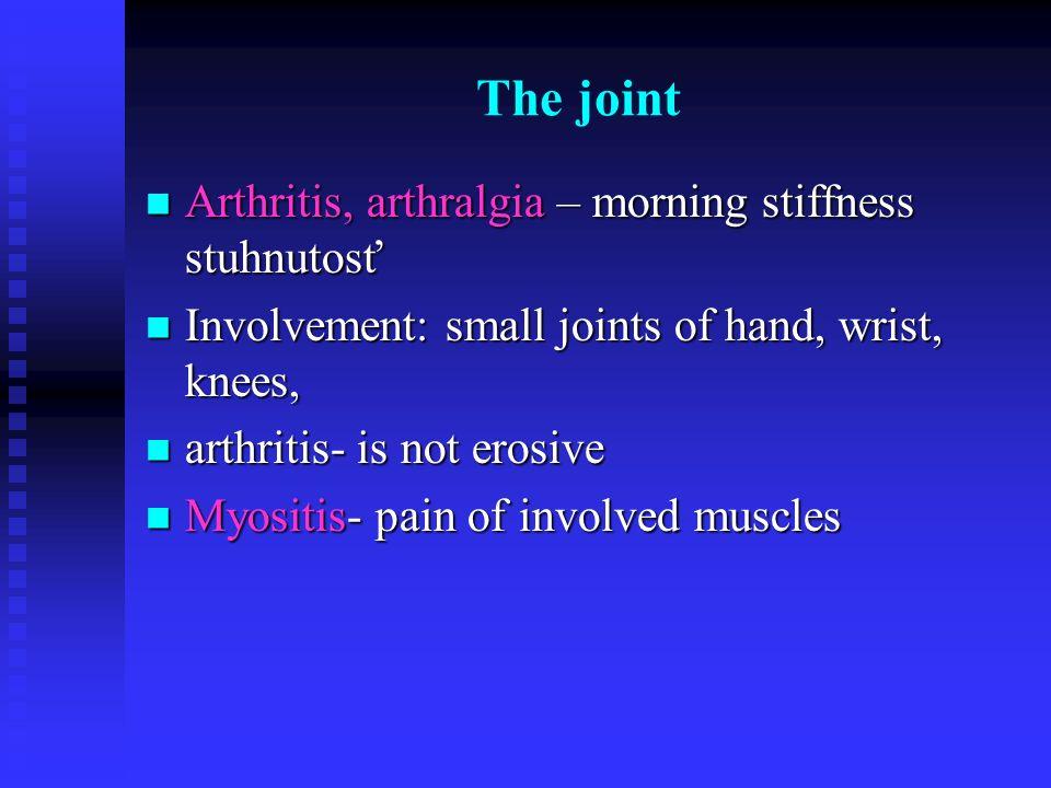 The joint Arthritis, arthralgia – morning stiffness stuhnutosť Arthritis, arthralgia – morning stiffness stuhnutosť Involvement: small joints of hand,