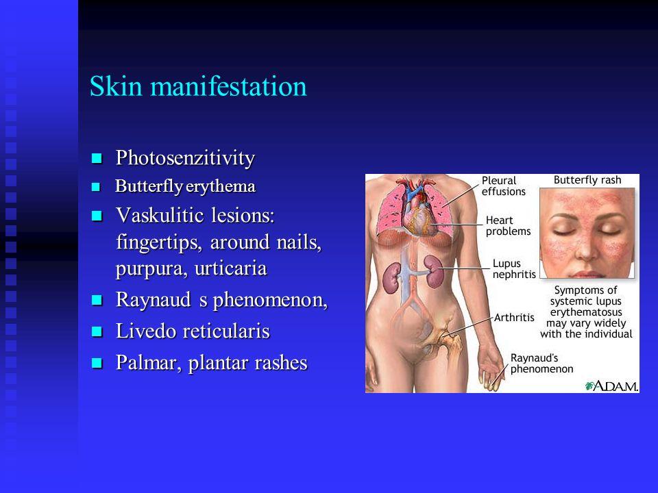 Skin manifestation Photosenzitivity Photosenzitivity Butterfly erythema Butterfly erythema Vaskulitic lesions: fingertips, around nails, purpura, urti