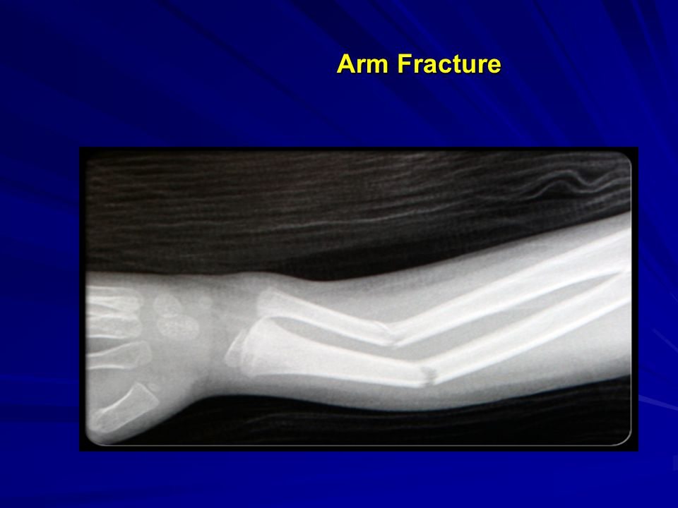 Arm Fracture Arm Fracture