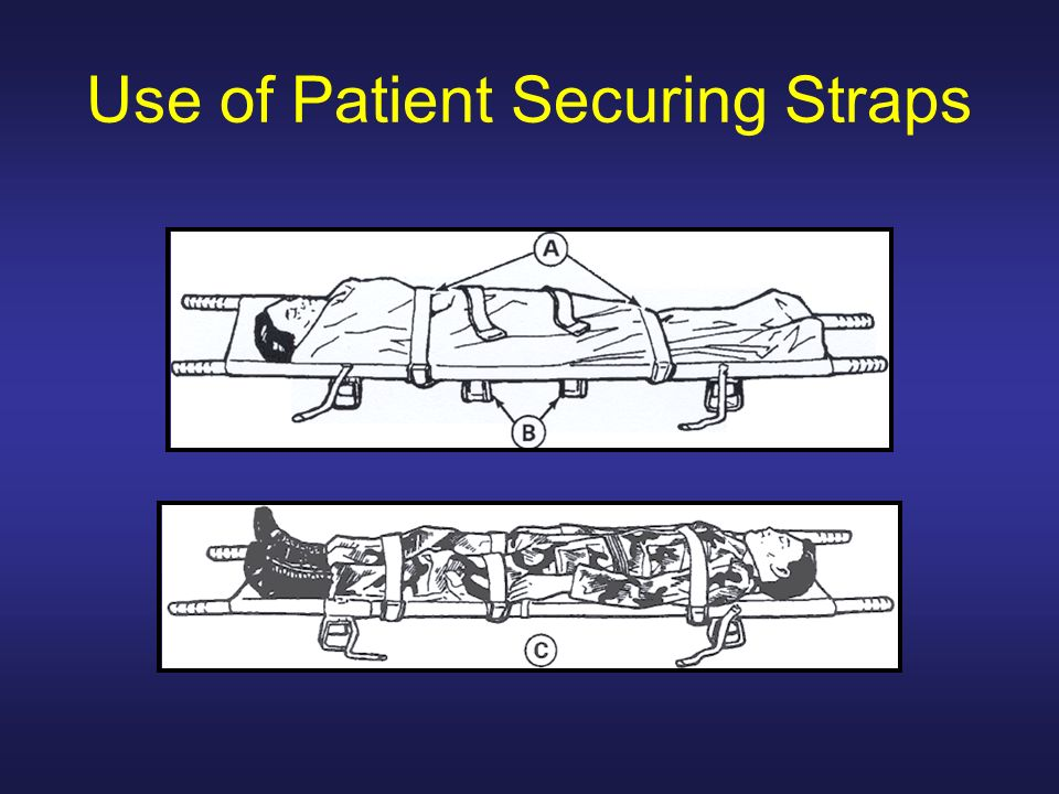 Use of Patient Securing Straps