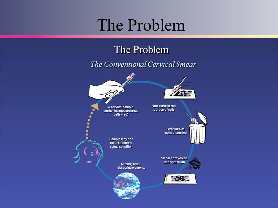 The Problem The Conventional Cervical Smear A cervical sample containing precancerous cells (red) A cervical sample containing precancerous cells (red