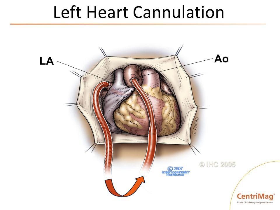 Left Heart Cannulation © IHC 2005 LA Ao