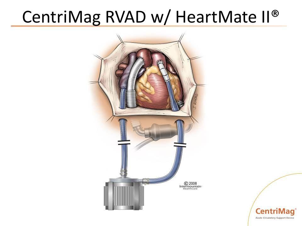 CentriMag RVAD w/ HeartMate II®