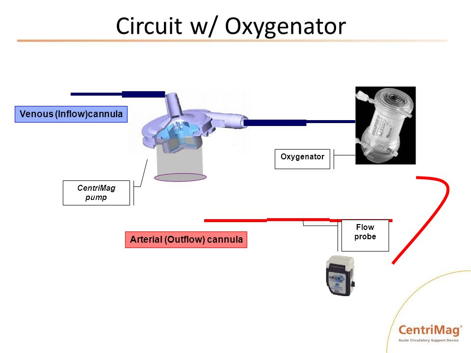 Circuit w/ Oxygenator CentriMag pump Oxygenator Venous (Inflow)cannula Arterial (Outflow) cannula Flow probe