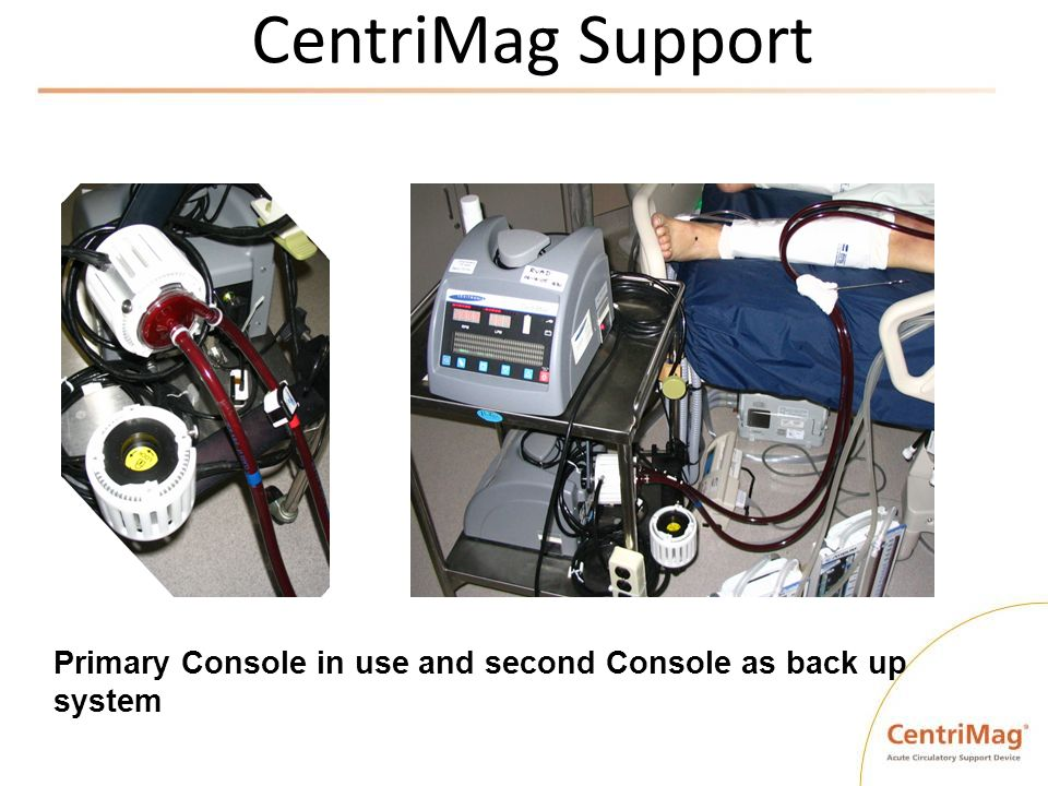 CentriMag Support Primary Console in use and second Console as back up system