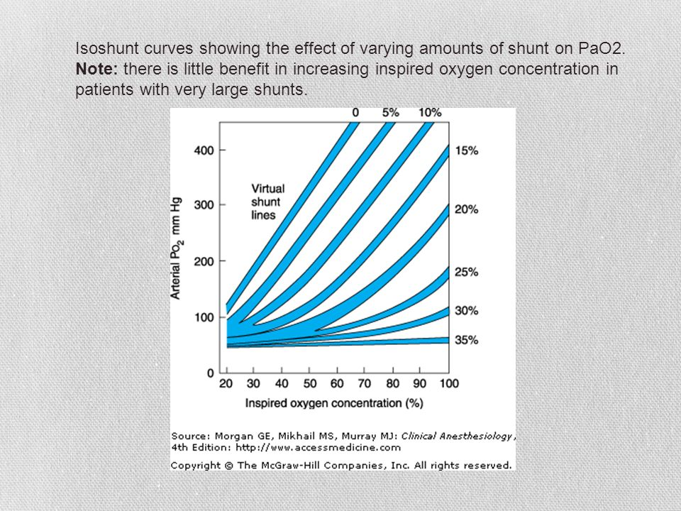 Isoshunt curves showing the effect of varying amounts of shunt on PaO2. Note: there is little benefit in increasing inspired oxygen concentration in p