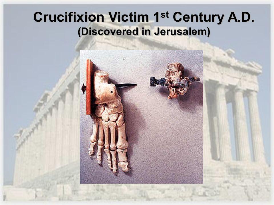 Crucifixion Victim 1 st Century A.D. (Discovered in Jerusalem)