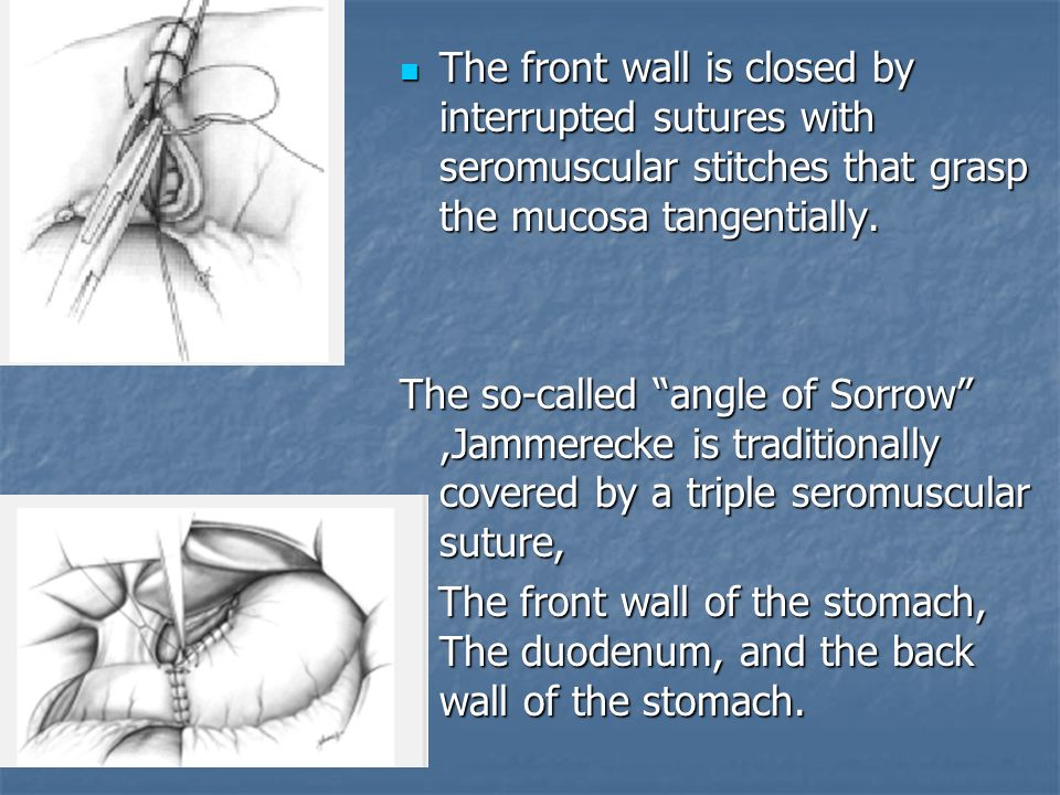 The front wall is closed by interrupted sutures with seromuscular stitches that grasp the mucosa tangentially. The front wall is closed by interrupted