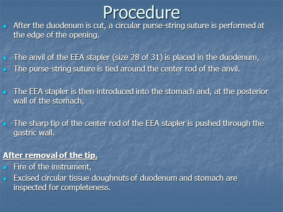 Procedure After the duodenum is cut, a circular purse-string suture is performed at the edge of the opening. After the duodenum is cut, a circular pur