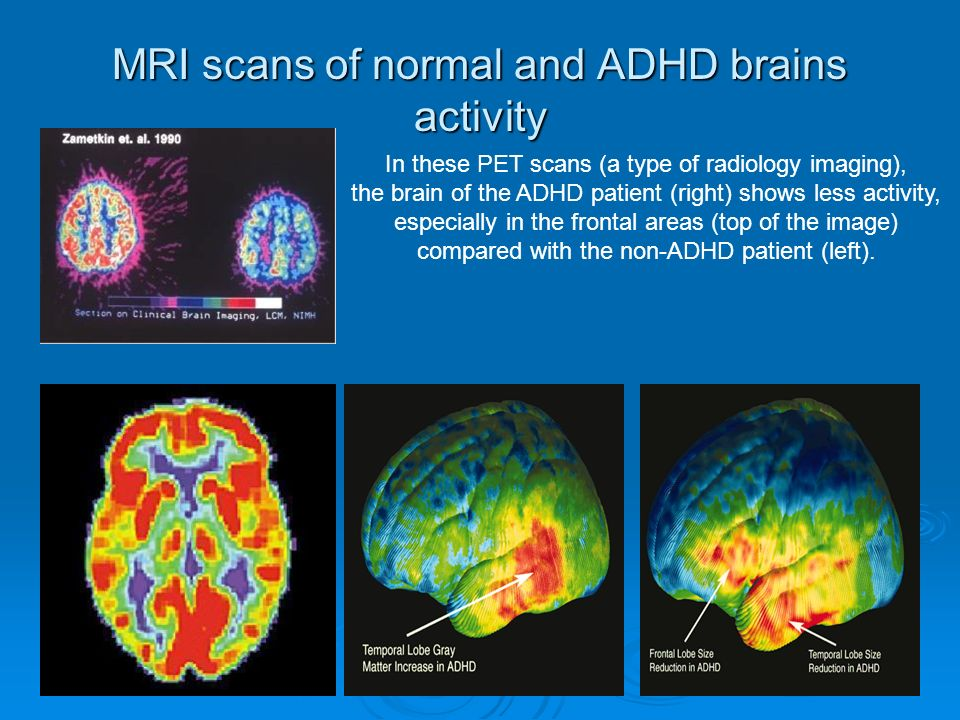MRI scans of normal and ADHD brains activity In these PET scans (a type of radiology imaging), the brain of the ADHD patient (right) shows less activity, especially in the frontal areas (top of the image) compared with the non-ADHD patient (left).