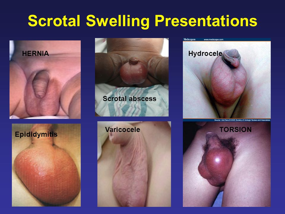 Syndromes Multiple syndromes impact the outer genitalia Many detected prenatally –Should be referred for prenatal consultation Immediate contact with center Postnatal transfer to center Inform parents that situation will be discussed in detail at the center