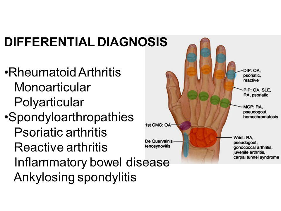 DIFFERENTIAL DIAGNOSIS Rheumatoid Arthritis Monoarticular Polyarticular Spondyloarthropathies Psoriatic arthritis Reactive arthritis Inflammatory bowe