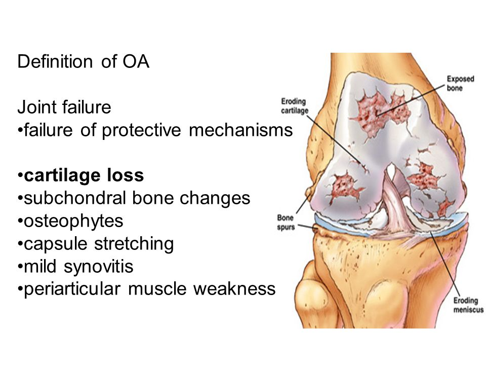 Definition of OA Joint failure failure of protective mechanisms cartilage loss subchondral bone changes osteophytes capsule stretching mild synovitis