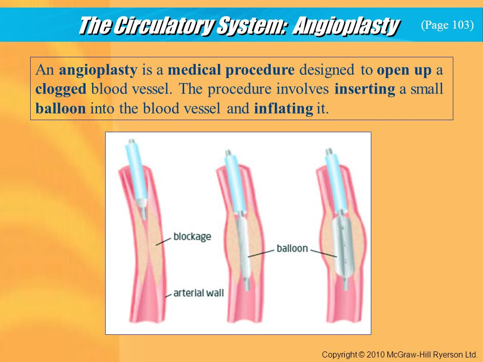 The Circulatory System: Angioplasty Copyright © 2010 McGraw-Hill Ryerson Ltd.