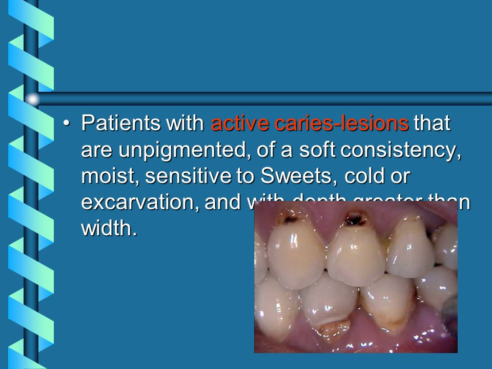 Patients with active caries-lesions that are unpigmented, of a soft consistency, moist, sensitive to Sweets, cold or excarvation, and with depth great
