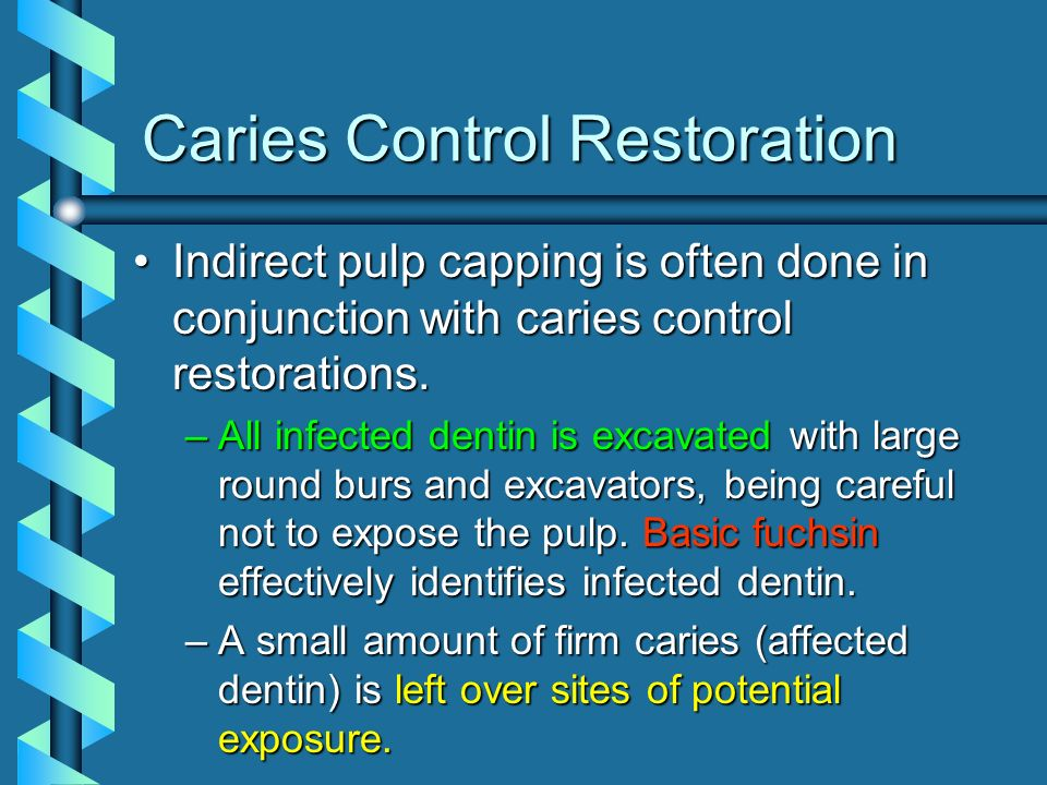 Indirect pulp capping is often done in conjunction with caries control restorations.Indirect pulp capping is often done in conjunction with caries con