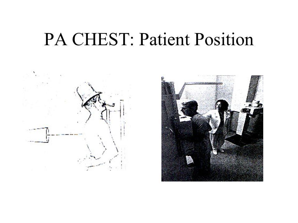 PA CHEST: Patient Position