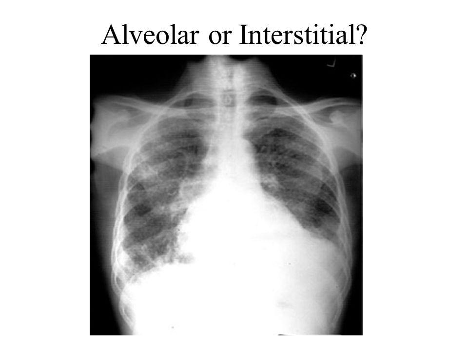Alveolar or Interstitial?