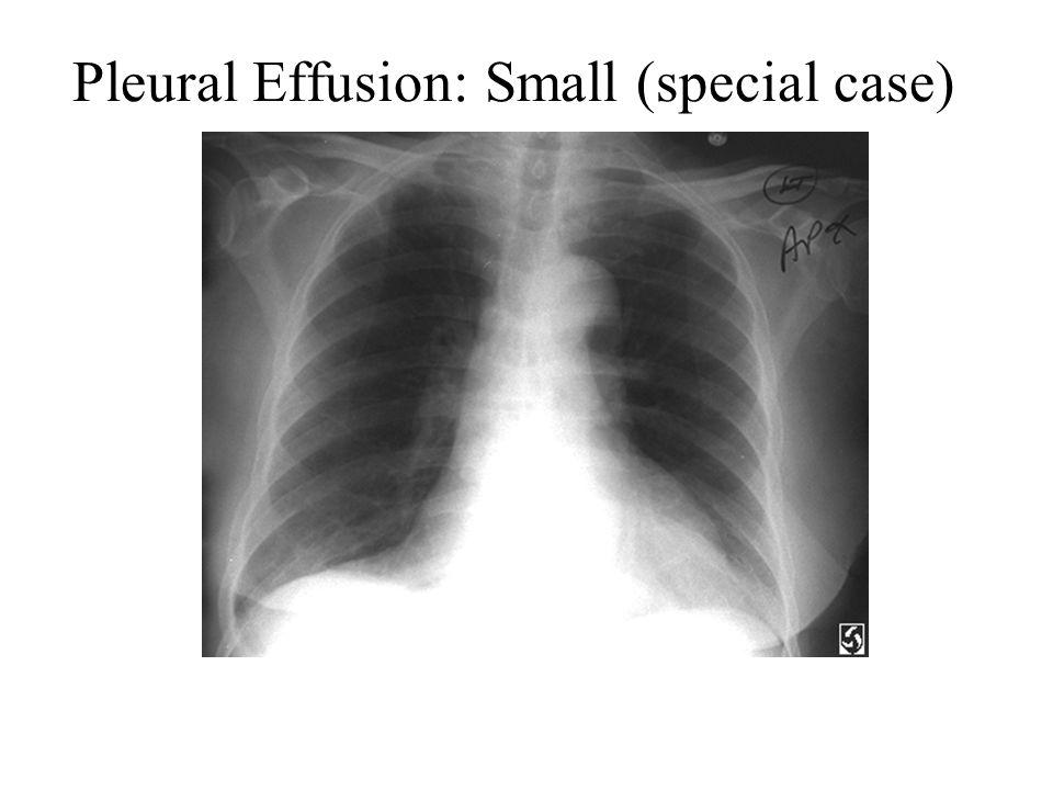 Pleural Effusion: Small (special case)