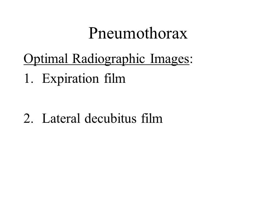 Pneumothorax Optimal Radiographic Images: 1.Expiration film 2. Lateral decubitus film