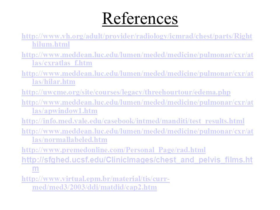 References http://www.vh.org/adult/provider/radiology/icmrad/chest/parts/Right hilum.html http://www.meddean.luc.edu/lumen/meded/medicine/pulmonar/cxr