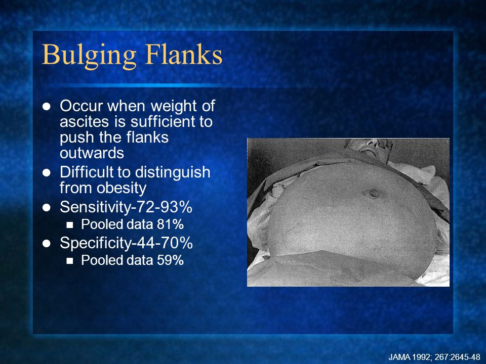 Bulging Flanks Occur when weight of ascites is sufficient to push the flanks outwards Difficult to distinguish from obesity Sensitivity-72-93% Pooled