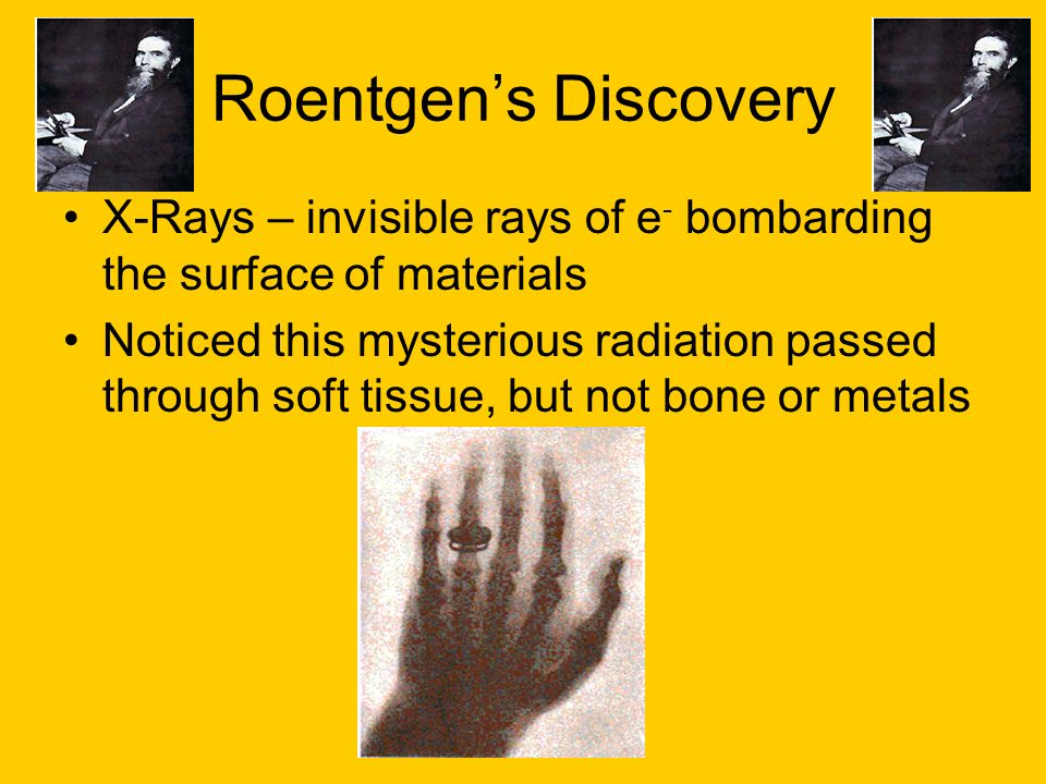 Roentgens Discovery X-Rays – invisible rays of e - bombarding the surface of materials Noticed this mysterious radiation passed through soft tissue, b
