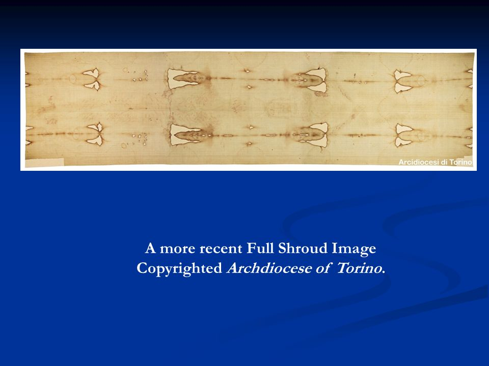 A more recent Full Shroud Image Copyrighted Archdiocese of Torino.