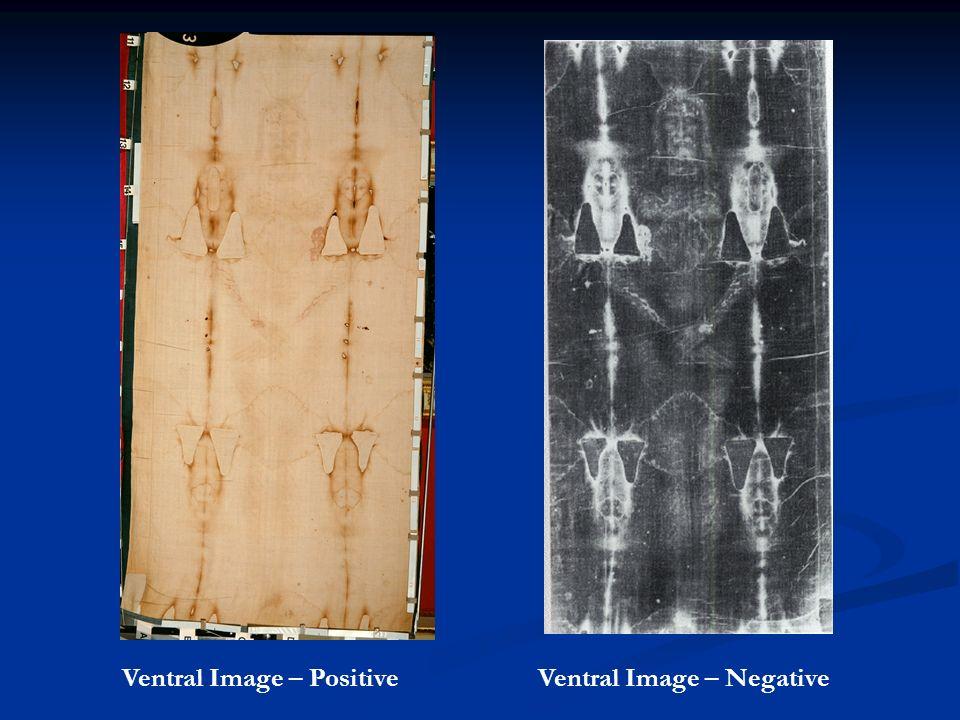 Ventral Image – PositiveVentral Image – Negative