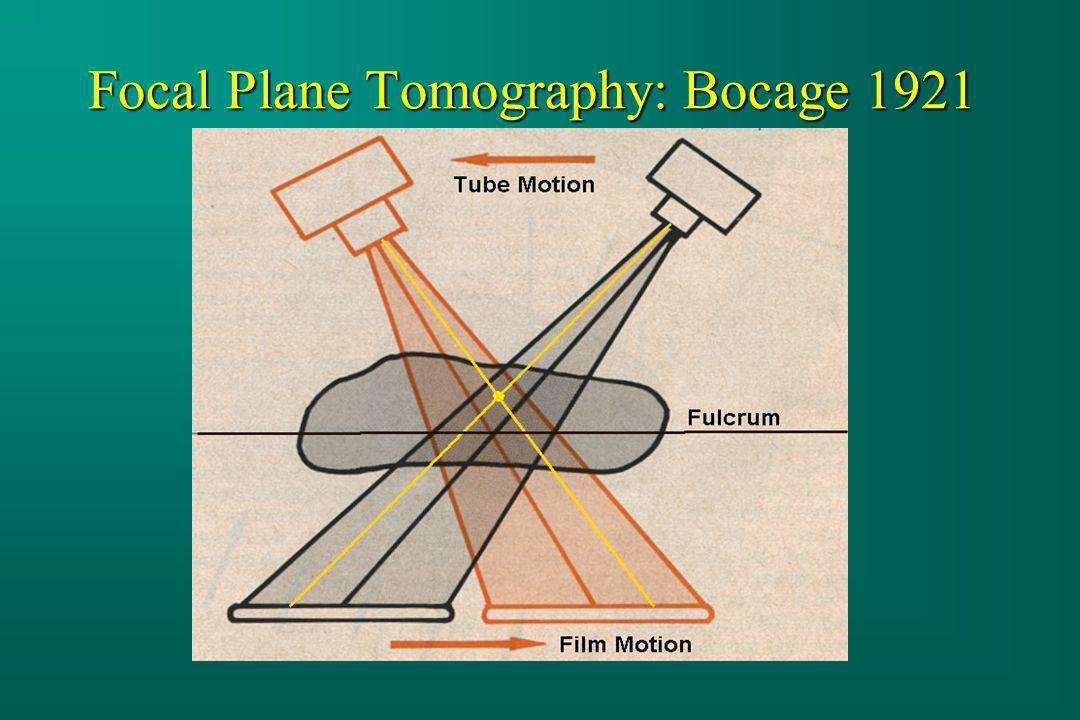 Focal Plane Tomography: Bocage 1921