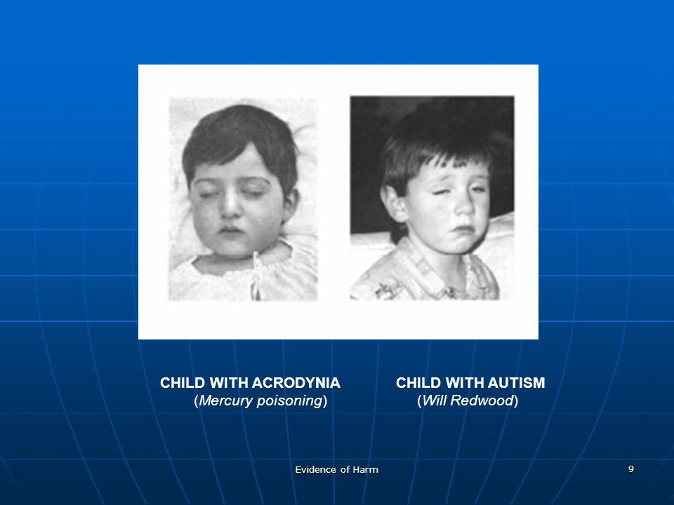 Evidence of Harm 9 CHILD WITH ACRODYNIACHILD WITH AUTISM (Mercury poisoning) (Will Redwood)