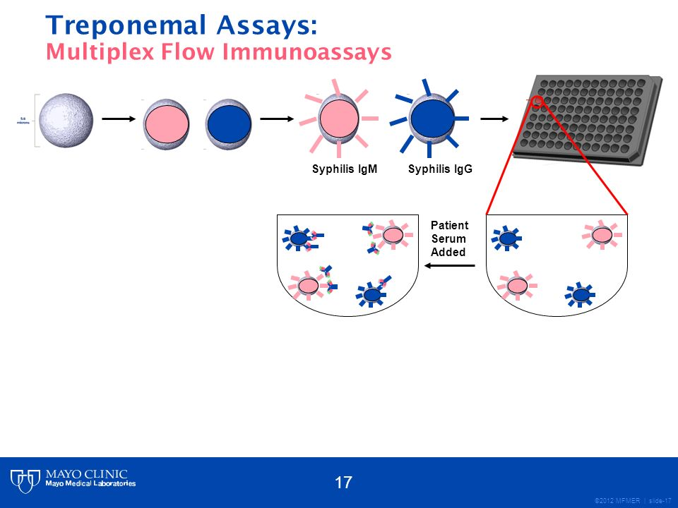 ©2012 MFMER | slide-17 Syphilis IgMSyphilis IgG Patient Serum Added Treponemal Assays: Multiplex Flow Immunoassays 17
