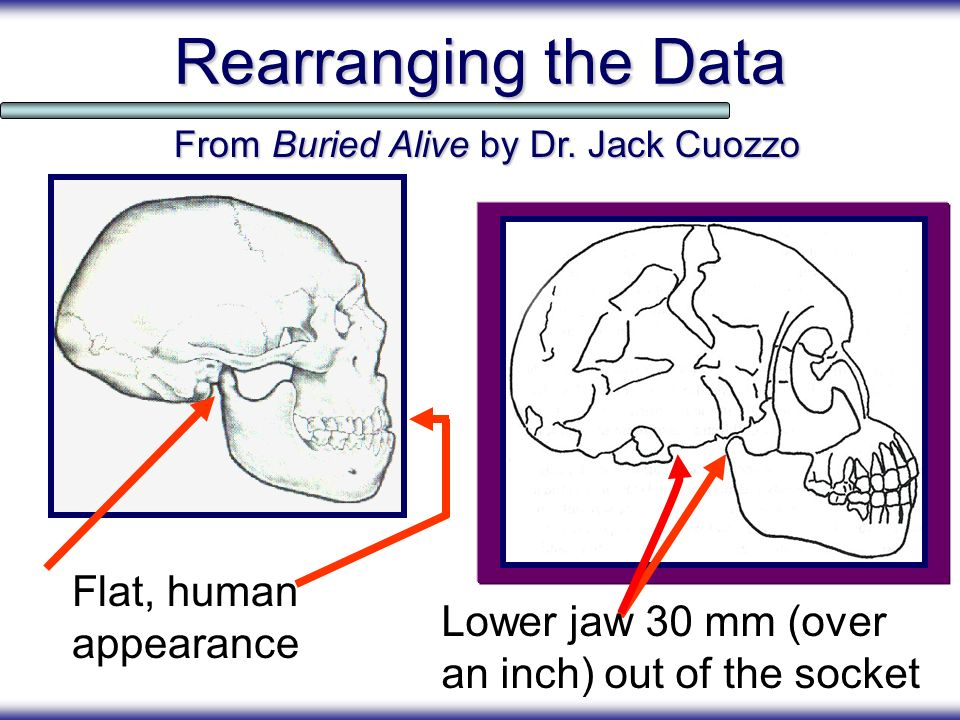 Rearranging the Data Flat, human appearance From Buried Alive by Dr. Jack Cuozzo Lower jaw 30 mm (over an inch) out of the socket