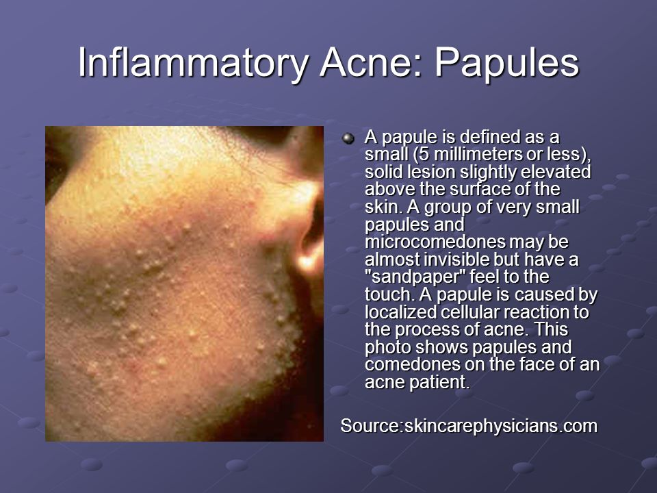 Inflammatory Acne: Papules A papule is defined as a small (5 millimeters or less), solid lesion slightly elevated above the surface of the skin. A gro