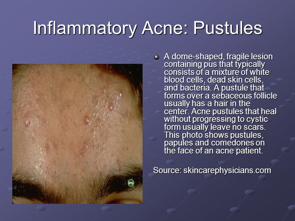 Inflammatory Acne: Pustules A dome-shaped, fragile lesion containing pus that typically consists of a mixture of white blood cells, dead skin cells, a