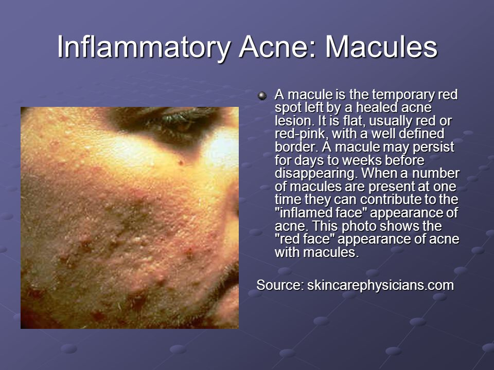 Inflammatory Acne: Macules A macule is the temporary red spot left by a healed acne lesion. It is flat, usually red or red-pink, with a well defined b