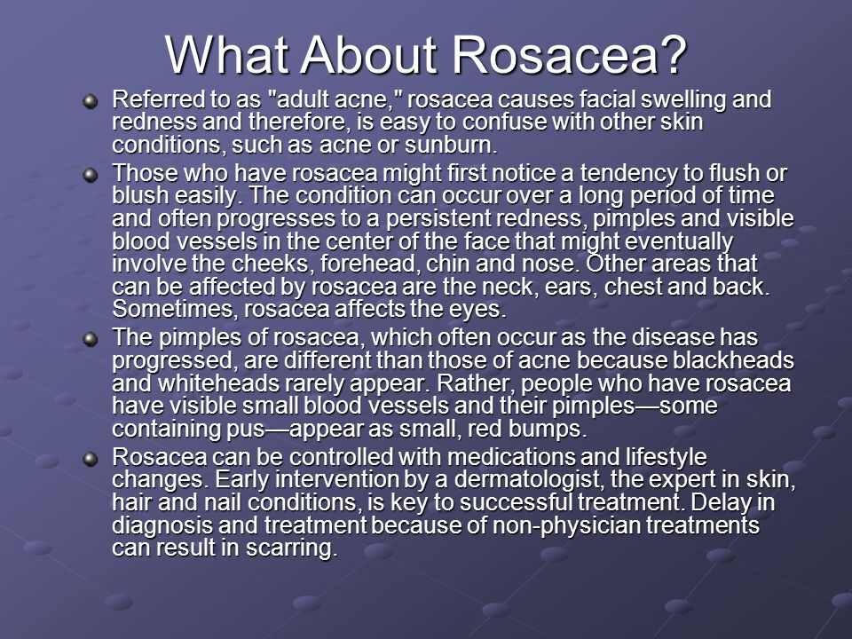 What About Rosacea? Referred to as