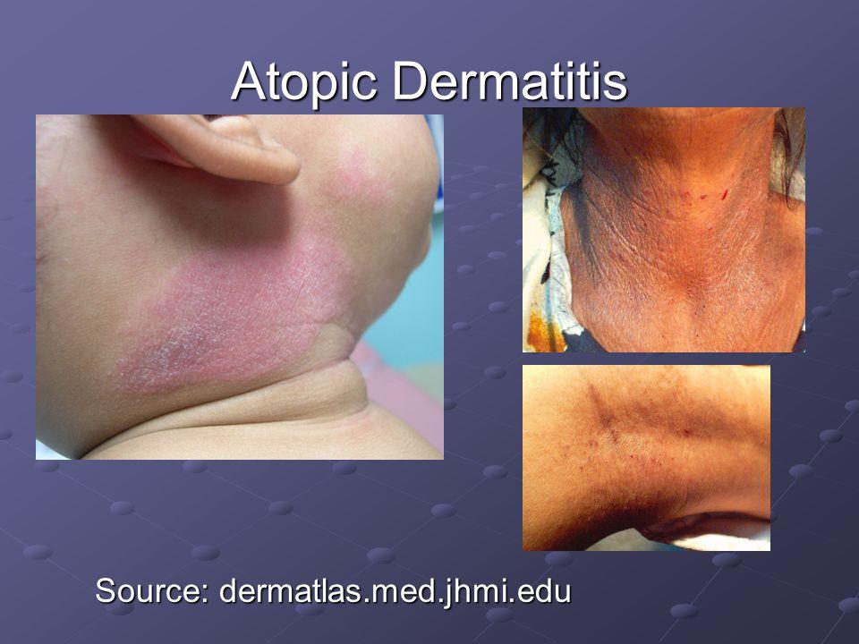 Atopic Dermatitis Source: dermatlas.med.jhmi.edu