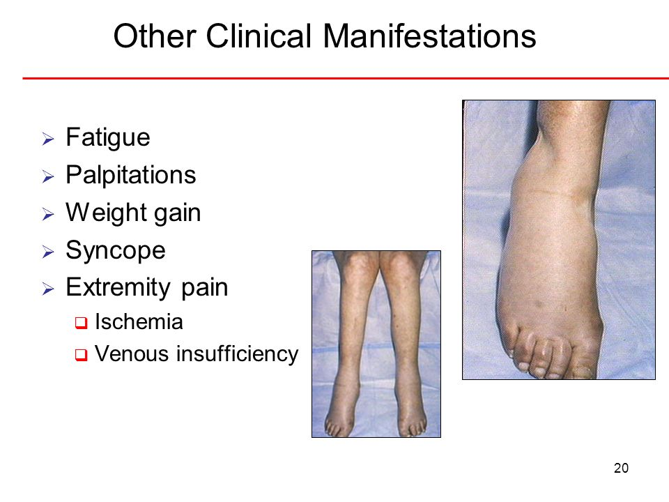 20 Other Clinical Manifestations Fatigue Palpitations Weight gain Syncope Extremity pain Ischemia Venous insufficiency