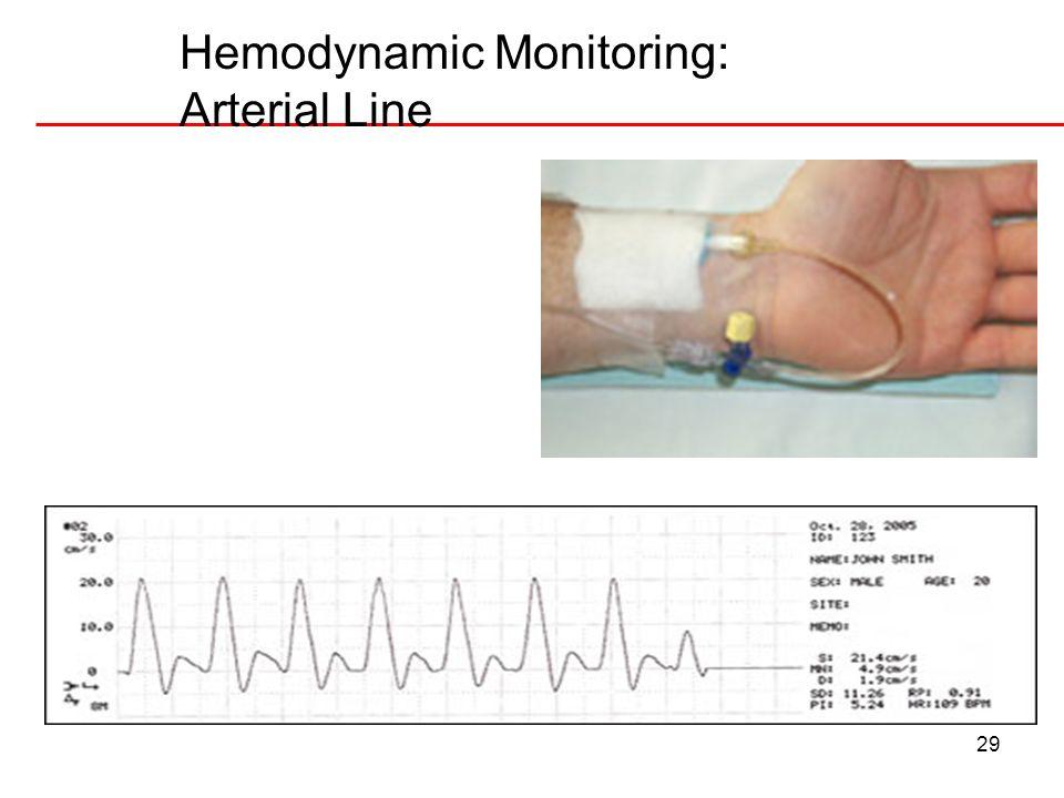 29 Hemodynamic Monitoring: Arterial Line