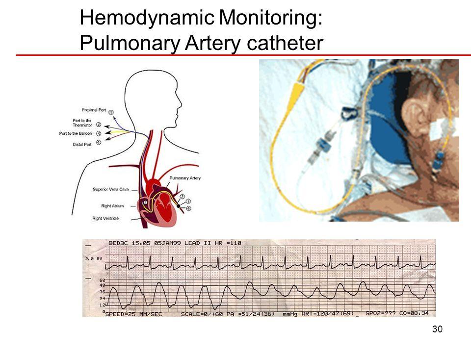 30 Hemodynamic Monitoring: Pulmonary Artery catheter